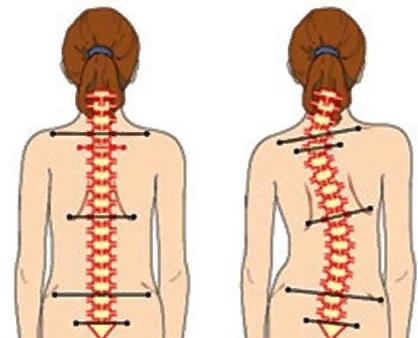 Массаж спины - виды, подготовка, описание, противопоказания