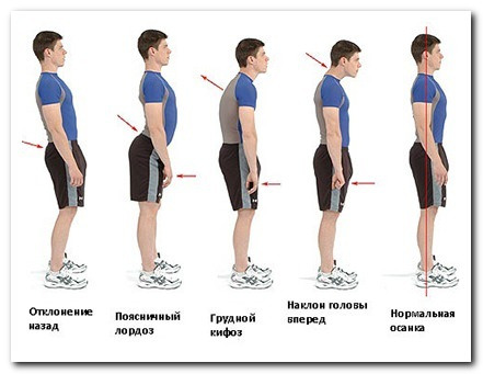 Ювенильный остеохондроз позвоночника - периоды, лечение, упражнения