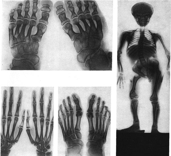 Хондродисплазия - экзостозная болезнь у детей, ахондродисплазия, метафизарная