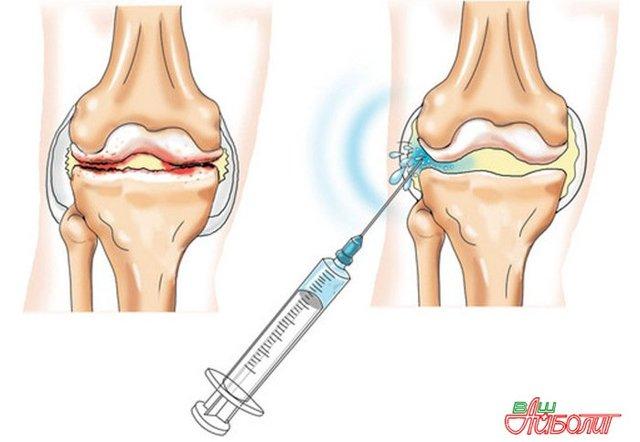 Хондропротекторы при артрозе коленного сустава - препараты, лекарства