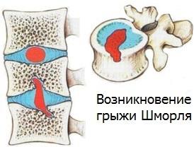Грыжа Шморля - что это такое, причины, виды, симптомы и лечение