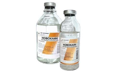 Электрофорез с новокаином при остеохондрозе, с лидокаином