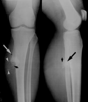 Остеохондрома бедренной и большеберцовой кости - что это такое