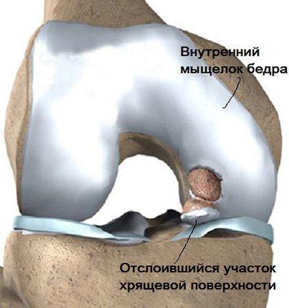 Рассекающий остеохондрит коленного сустава и медиального мыщелка бедренной кости