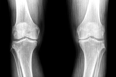 Гонартроз коленного сустава - что это, симптомы и лечение