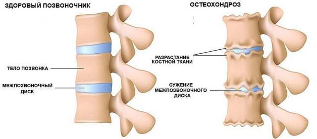 Ортопедический валик под шею для сна при остеохондрозе, как правильно лежать
