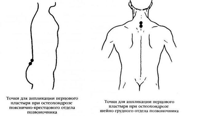Китайские пластыри от остеохондроза позвоночника - какой лучше?