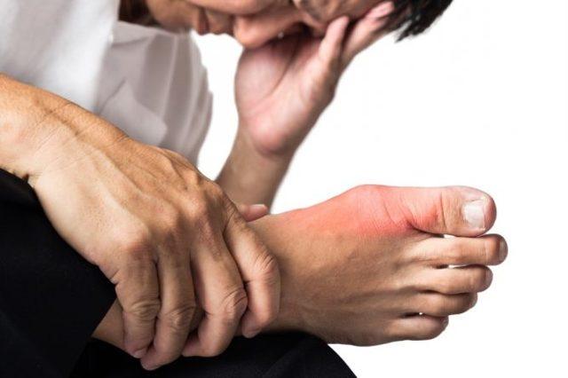 Подагра - признаки и лечение у мужчин, симптомы, диагностика