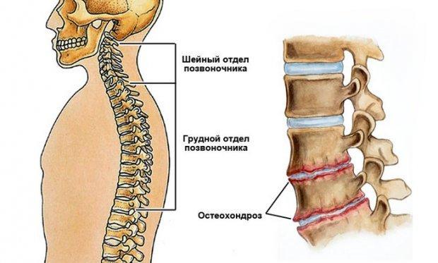 Гимнастика при грудном остеохондрозе в домашних условиях