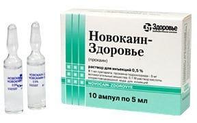 Острый Хондроз отделов позвоночника - что это, симптомы и лечение