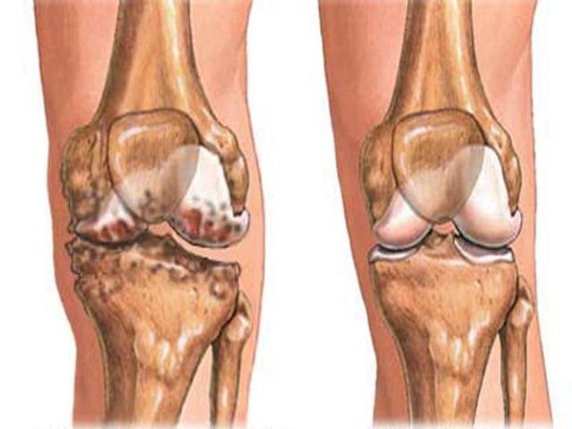 Остеосклероз - что это такое, субхондральный, суставных поверхностей