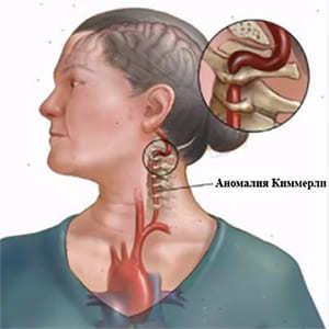 Аномалия Киммерли в шейном отделе - что это, симптомы и лечение
