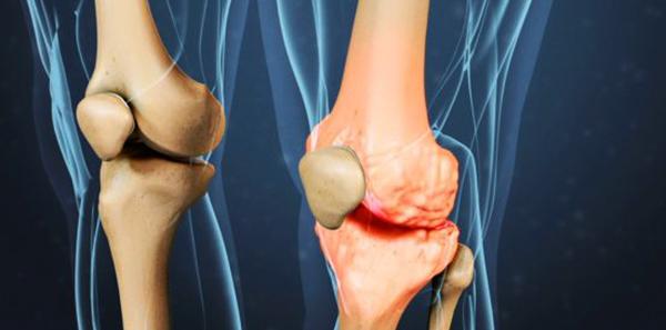 Артрит коленного сустава - симптомы и лечение, особенности