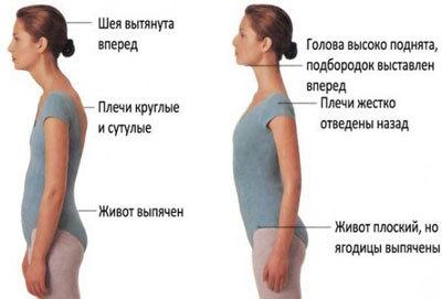 Остеохондроз шейного отдела позвоночника - лечение народными средствами