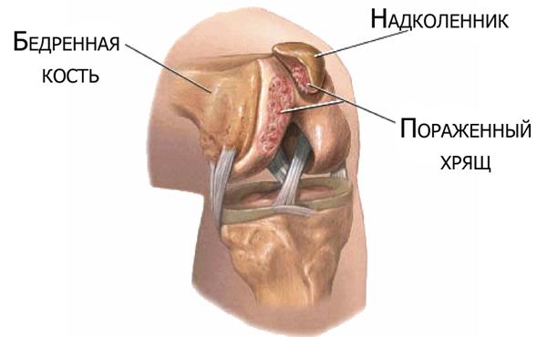 Хондромаляция надколенника, коленного сустава - что это такое, степени и лечение