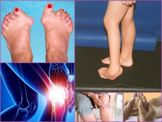 Нсп при лечении артрита