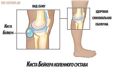 Киста Бейкера коленного сустава - симптомы и лечение, что это