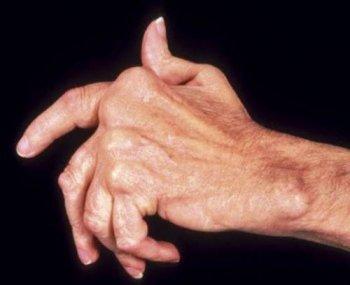 Полиартрит - что это такое, симптомы и лечение, причины, виды
