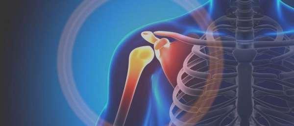 Лопаточный остеохондроз симптомы и лечение