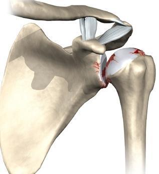 Остеохондроз под левой лопаткой - лечение и симптомы