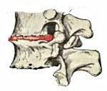 Код по МКБ 10 остеохондроз шейного отдела позвоночника - причины