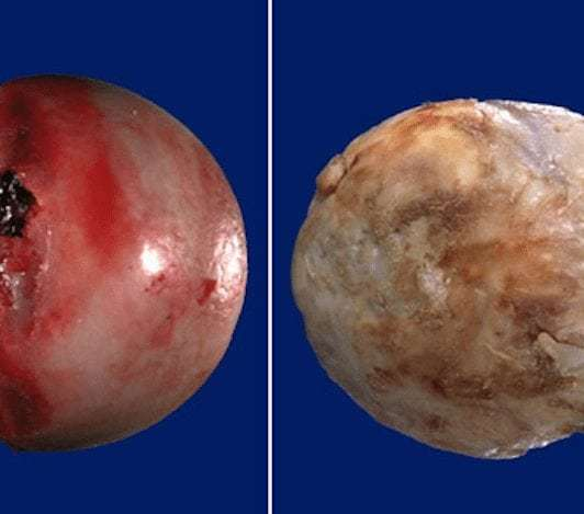 Остеоартроз суставов - что это, лечение, симптомы, причины