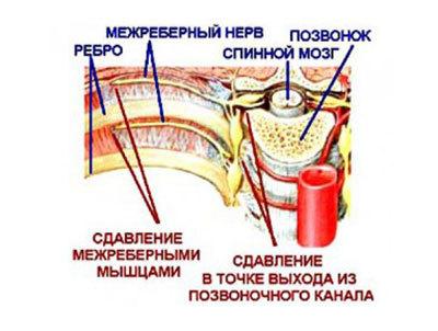 Остеохондроз шейно грудного отдела - симптомы, лечение, синдром