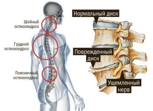 Тахикардия при остеохондрозе, от чего может быть