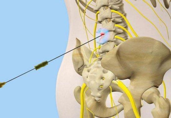 Уколы при остеохондрозе поясничного отдела, блокада позвоночника - что это такое