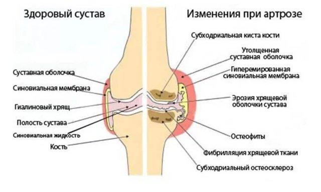 Пилатес при остеохондрозе шейного отдела - польза