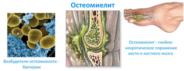 Остеомиелит - что это, виды, симптомы и лечение болезни