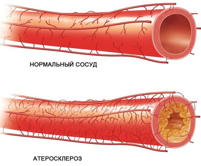 Вертебро базилярная недостаточность (ВБН) - симптомы и лечение, что это такое