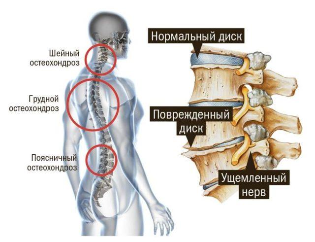 Все о массаже с мёдом от остеохондроза - видео массажа шейного отдела