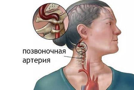 Препараты для улучшения мозгового кровообращения при шейном остеохондрозе