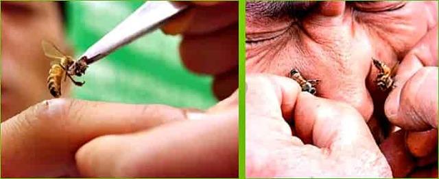 Лечение остеохондроза пчелиными укусами - апитерапия, яд пчел