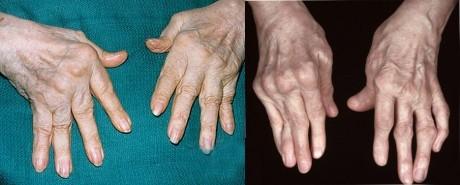 Ревматоидный Артрит - симптомы, лечение, диагностика