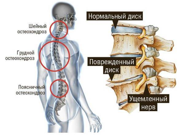 Боль в сердце при остеохондрозе - симптомы, как отличить и как болит