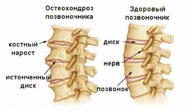 Бег при остеохондрозе шейного отдела - необходимая нагрузка