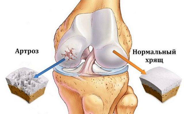 Артроз коленного сустава - способы лечения и симптомы