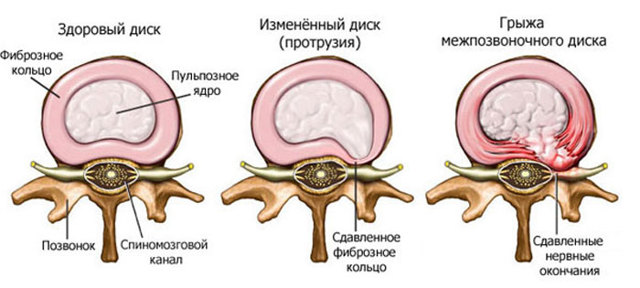 Симптомы и признаки шейного остеохондроза у женщин - что делать?