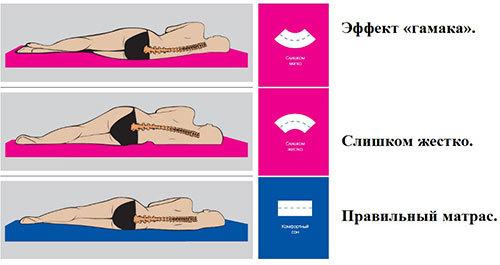 Как правильно выбрать ортопедический матрас при остеохондрозе?