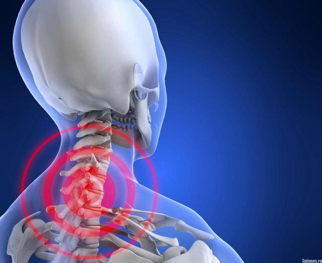 Шейный остеохондроз и артериальное давление, может ли повышаться давление