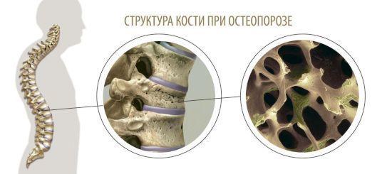 Денситометрия костей - что это такое и как ее проводят?