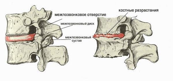 Можно ли умереть от остеохондроза шейного отдела?