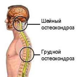 Шейно-грудной остеохондроз - лечение народными средствами дома