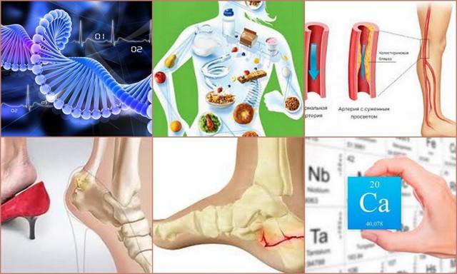 Болезнь Шинца у детей, остеохондропатия пяточной кости - лечение и симптомы