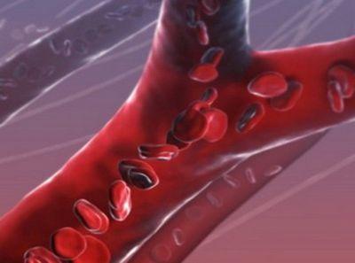 Нарушение венозного оттока головного мозга - симптомы лечение при остеохондрозе