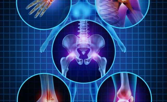 Хондропротекторы для суставов нового поколения, список препаратов, самые эффективные