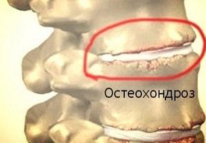 Карбокситерапия при остеохондрозе для лечения суставов и отзывы