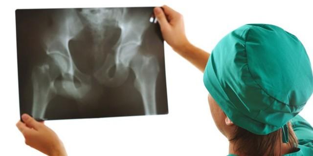 Коксартроз тазобедренного сустава - симптомы и лечение, степени, что это такое